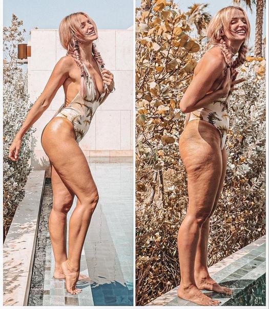 Американская журналистка и блогерша Данаи Мерсер показала фотографии изъянов своего тела без ретуши и восхитила поклонников смелостью Подписчики журналистки похвалили ее за честность и написали